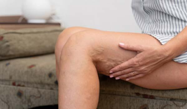 tratamento de varizes campinas mulher