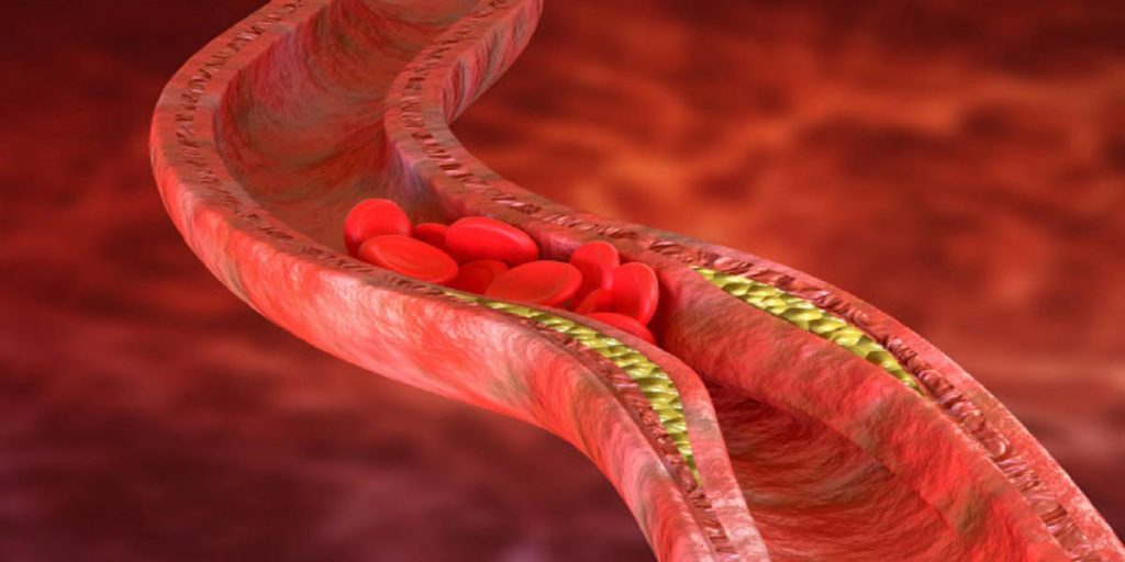angioplastia avc riscos saiba mais